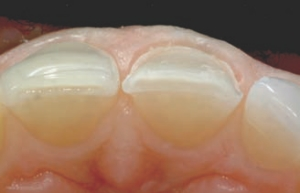 When Preparing The Tooth For A Veneer Certain Things Should Be Kept In Mind Like Type Of Material Desired Thickness And Also